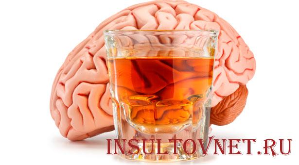 Можно ли употреблять пиво после инсульта