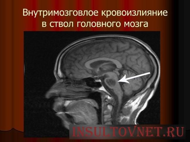 Инсульт головного мозга: типы и лечение