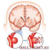 Причины геморрагического инсульта