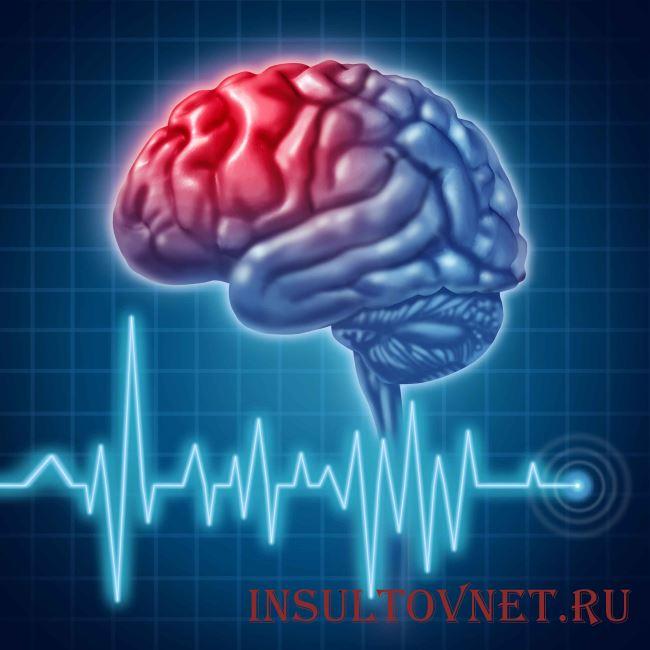 Причины поражения головного мозга
