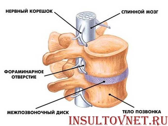 Инсульт спинальный