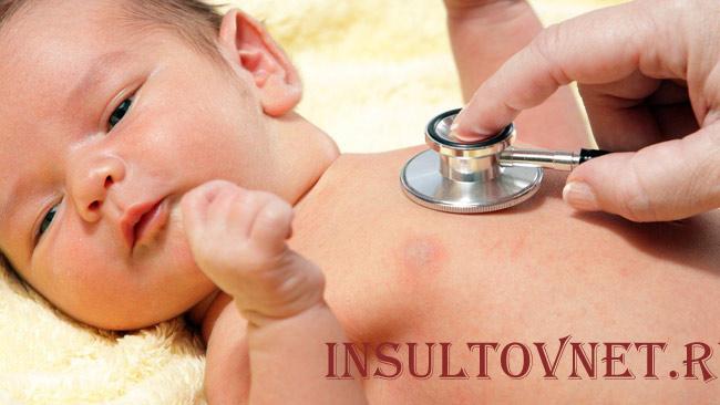 Детский инсульт