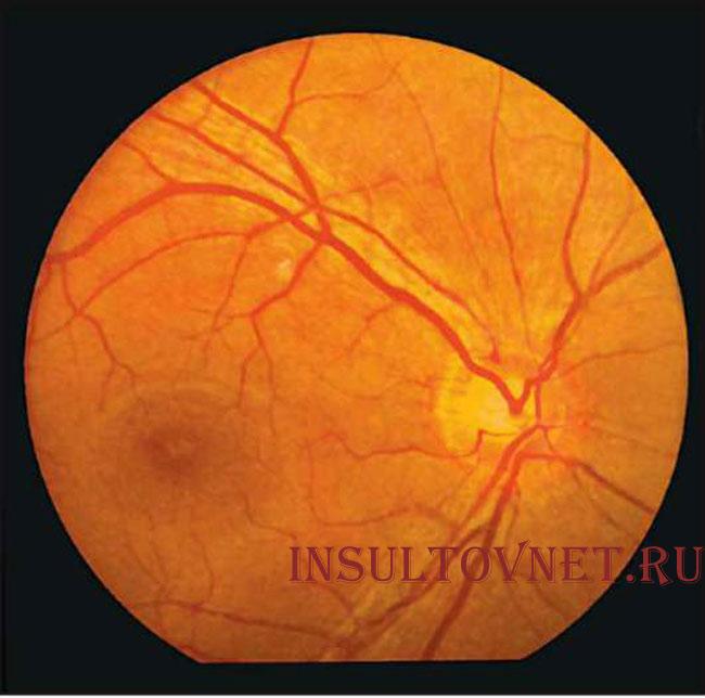 Глазное дно после инсульта