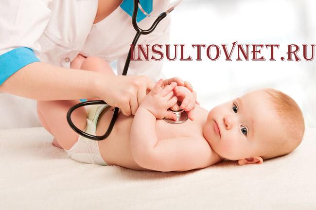Симптомы инсульта у новорожденных