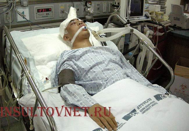 Кома после геморрагического инсульта
