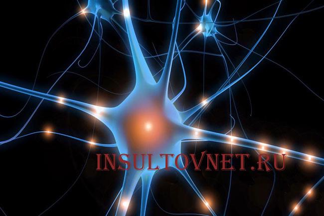 Неврология при инсульте