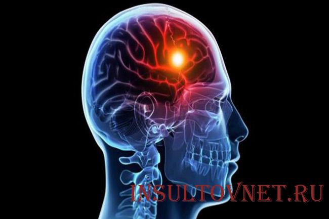Особенности лакунарного инсульта