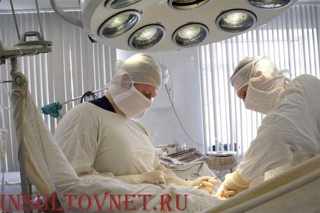 операция 2