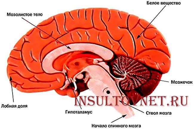 Инсульт мозжечка