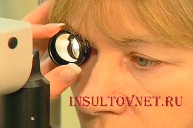 Лечение глазного инсульта