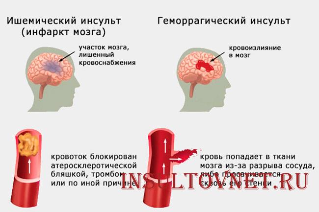 Легкая и тяжелая форма инсульта