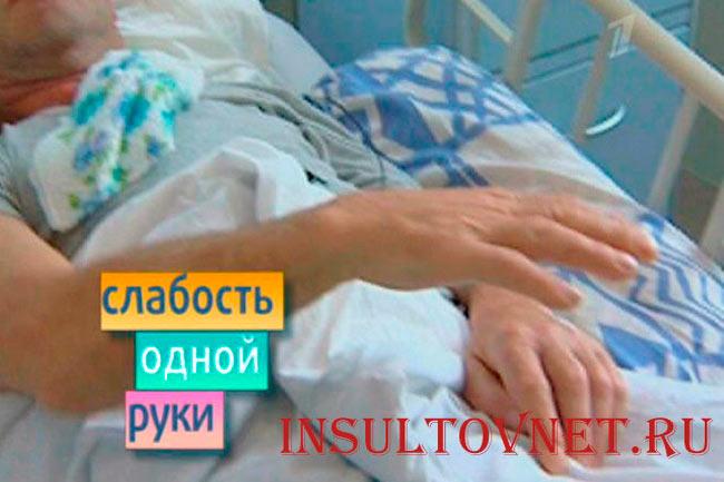 Парализация руки