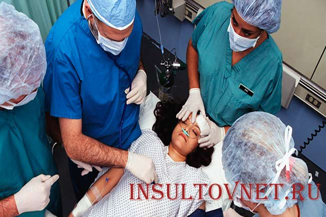 Последствия острого инсульта
