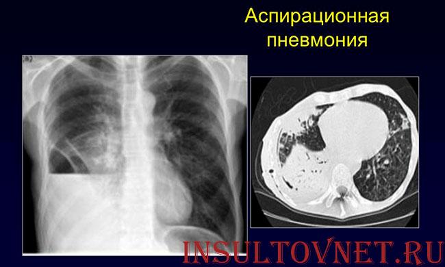 аспирационная пневмония