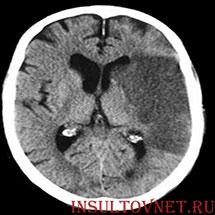 tomografija insulta mini