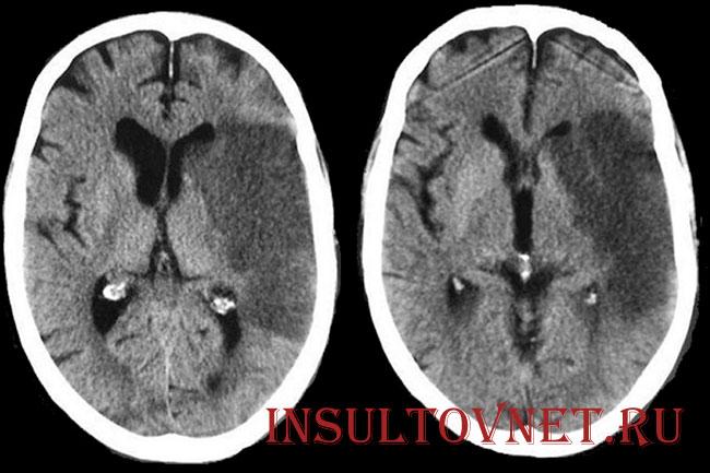 томография инсульта