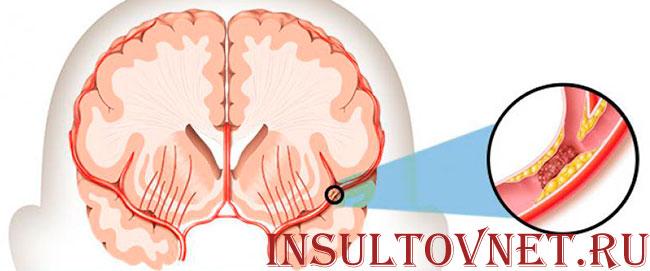 тромбоз сосудов мозга
