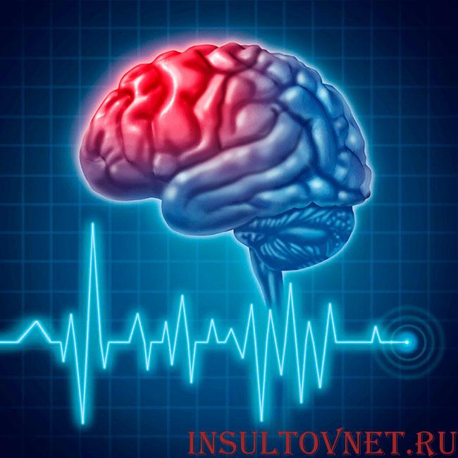 зона инсульта