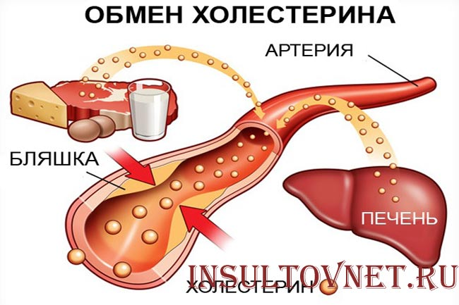 Последствия после инсульта головного мозга: причины и стадии комы