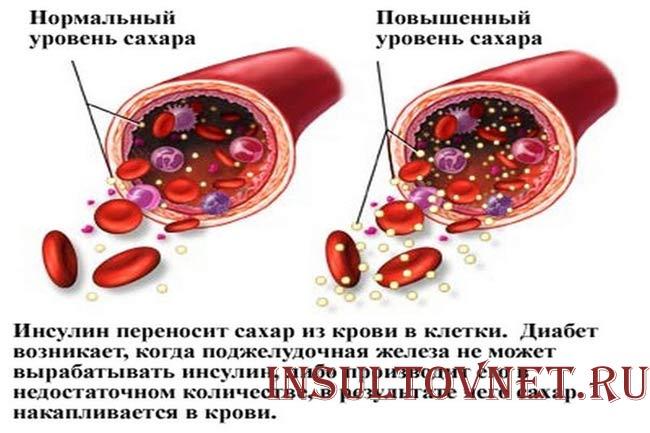Избыток сахара в крови