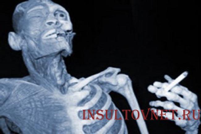 Курение инсульт