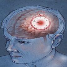 Левосторонний ишемический инсульт