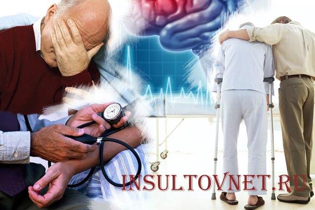 Паралич после инсульта