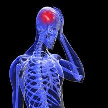 Последствия после инсульта головного мозга