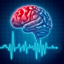 Паралич правой стороны после инсульта: симптомы и лечение