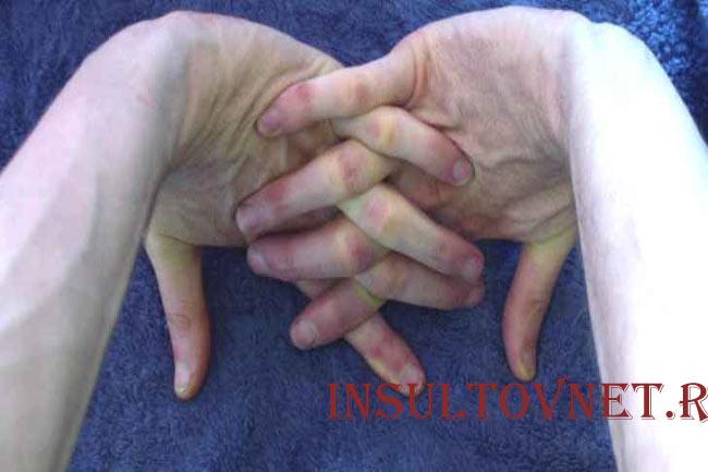 Разминка пальцев