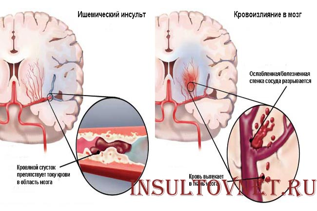 Виды инсультов