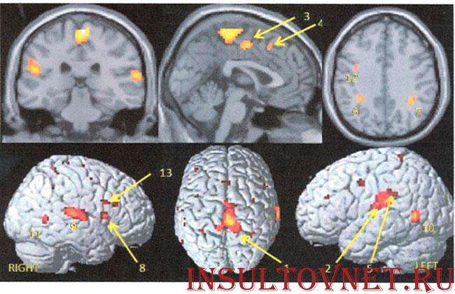 объемное изображение мозга