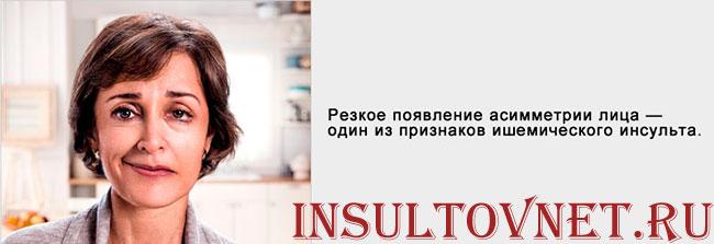 Проявления инсульта