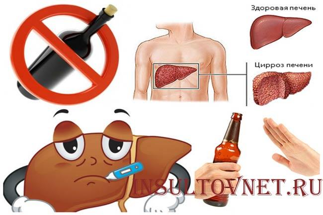 Алкоголь и цирроз печени