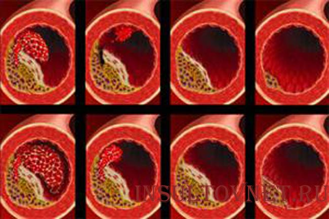 Атеросклеротическая бляшка в аорте