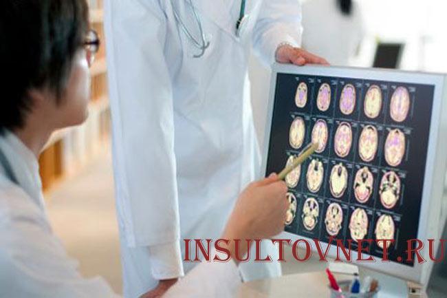 Диагностика при инсульте