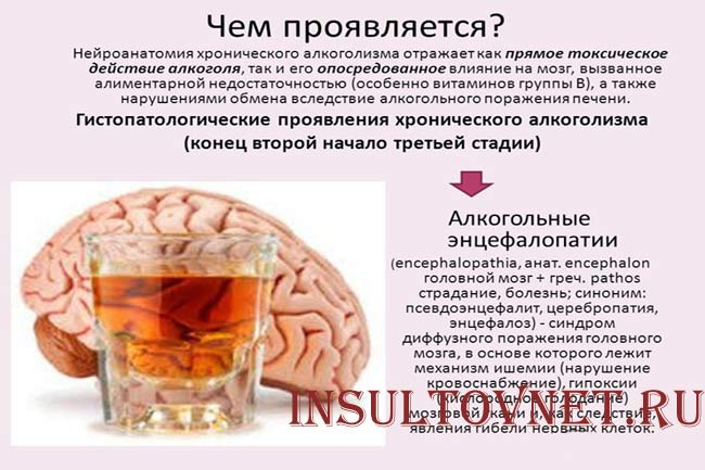 Как проявляется алкогольная энцефалопатия