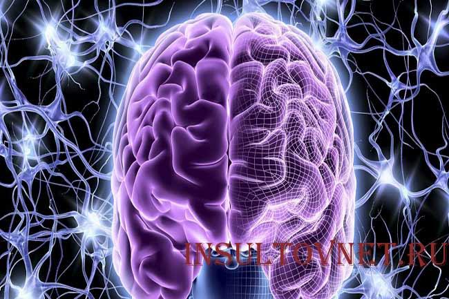 Парциальный приступ эпилепсии