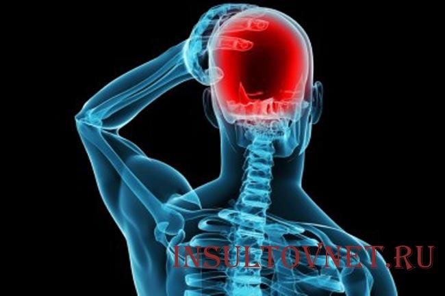 Симптомы абузусной головной боли