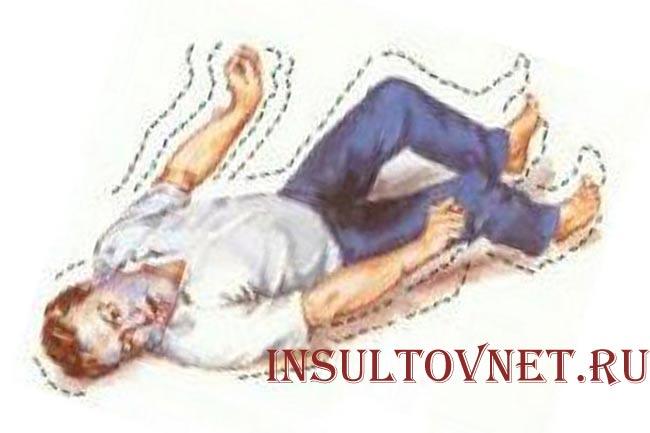 Судороги при эпилепсии