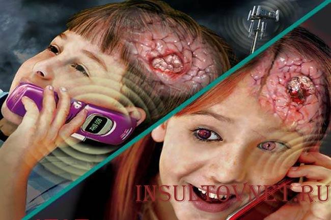 Влияние сотового телефона на мозг