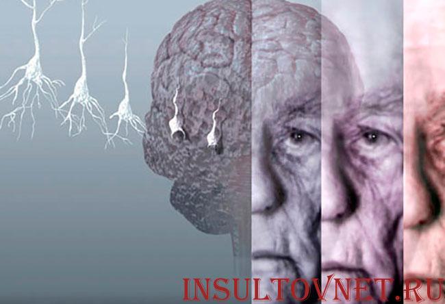 дистрофия мозга