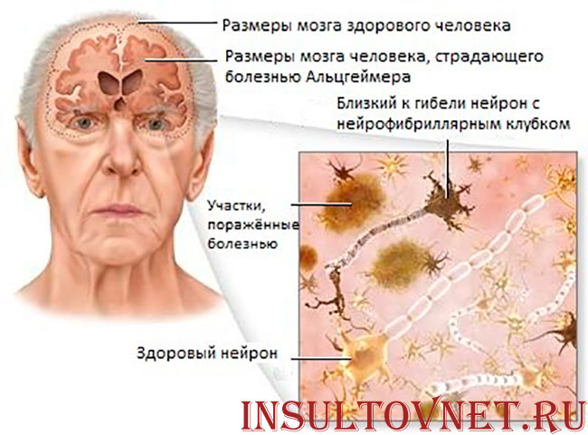 нейроны при болезни Альцгеймера