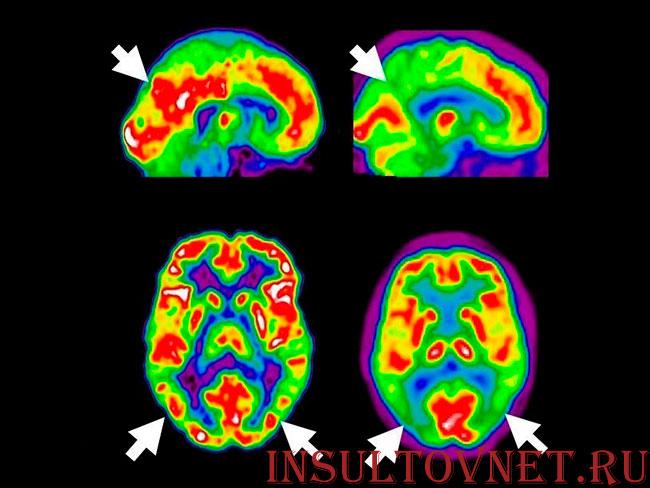 ПЭТ при Альцгеймере