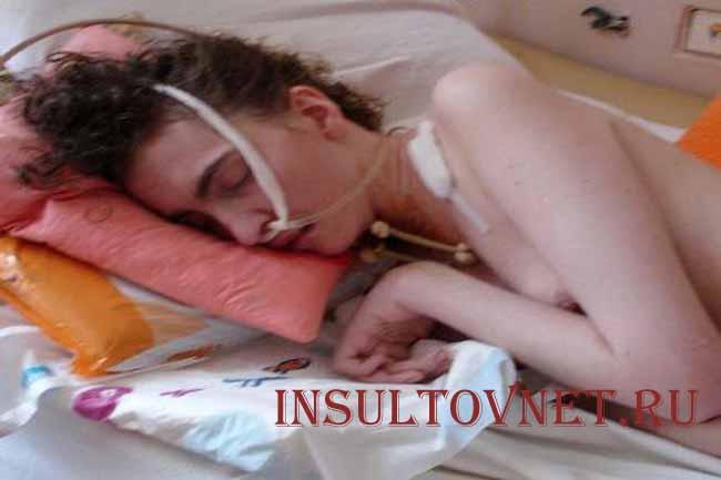 Токсическая энцефалопатия у взрослых