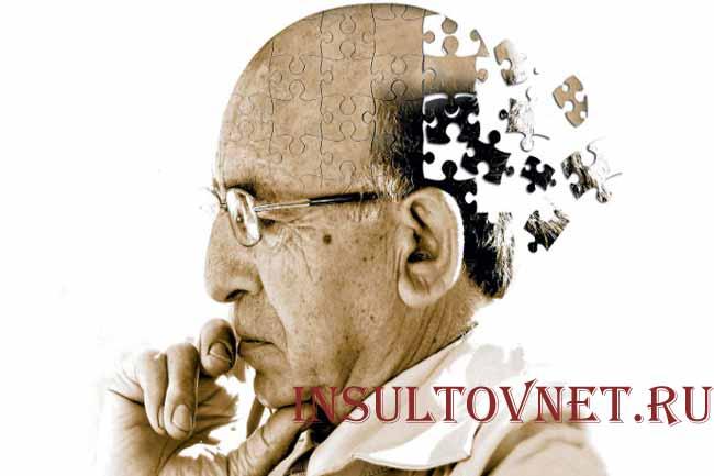Тестирование на болезнь Альцгеймера