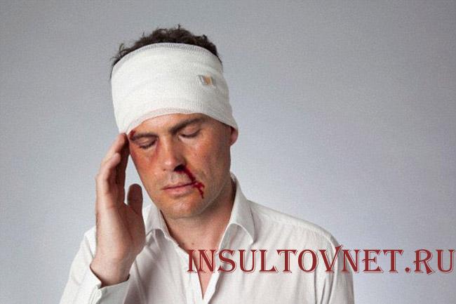 Болит голова после травмы головы