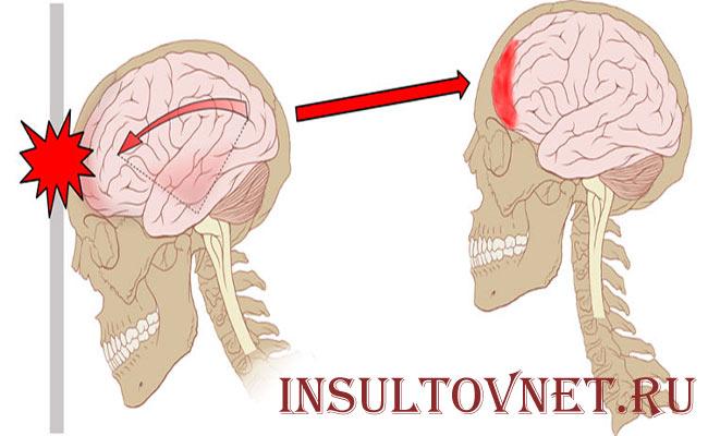 Болит лоб после травмы