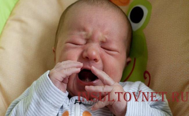 Невралгия тройничного нерва у детей