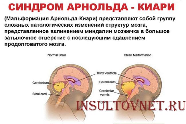 Синдром Арнольда-Киари